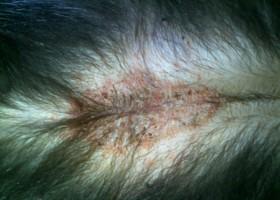 Лечение опоясывающего герпеса на теле