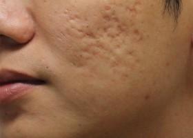 Удаление жировиков на лице
