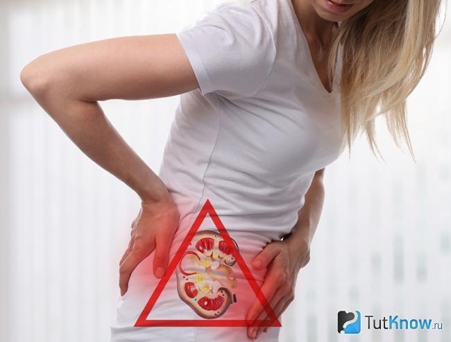 Мочекаменная болезнь как противопоказание к употреблению урад дала