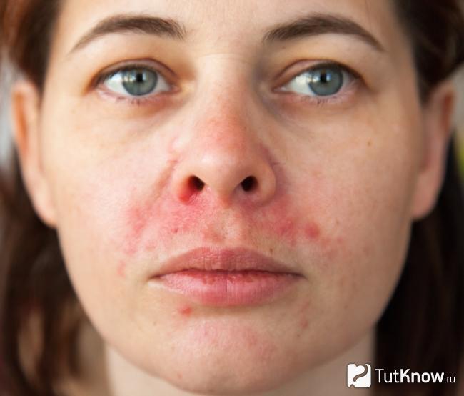 Аллергия на капусту для лица