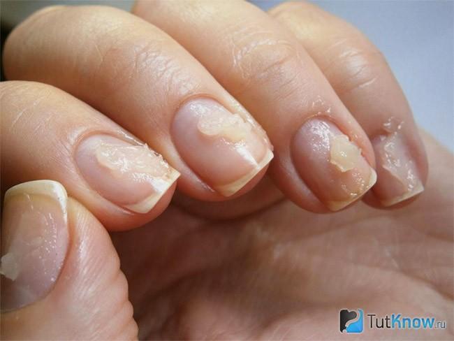 Как ускорить рост ногтей в домашних условиях 50