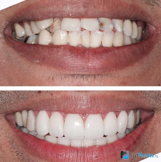 зубы perfect smile veneers инструкция